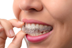 clear braces - invisalign trays